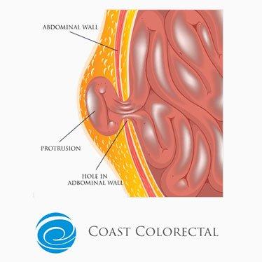 hernia condition