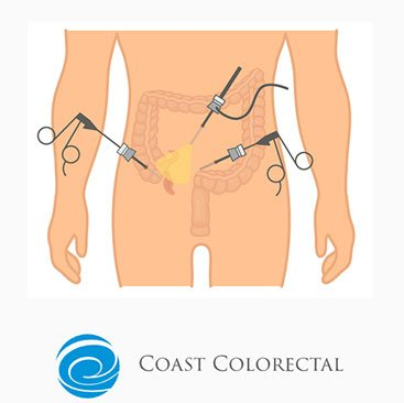 Laparoscopic Surgery Tweed